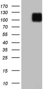 LPIN3 / Lipin-3 Antibody - HEK293T cells were transfected with the pCMV6-ENTRY control. (Left lane) or pCMV6-ENTRY LPIN3. (Right lane) cDNA for 48 hrs and lysed. Equivalent amounts of cell lysates. (5 ug per lane) were separated by SDS-PAGE and immunoblotted with anti-LPIN3.