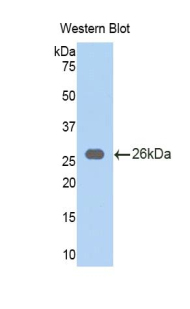 Western blot of recombinant LPO / Lactoperoxidase.  This image was taken for the unconjugated form of this product. Other forms have not been tested.