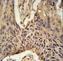 LPPR4 Antibody immunohistochemistry of formalin-fixed and paraffin-embedded human lung carcinoma followed by peroxidase-conjugated secondary antibody and DAB staining.
