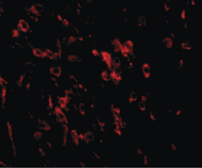 LRFN1 Antibody - Immunofluorescence of LRFN1 in mouse brain tissue with LRFN1 antibody at 20 ug/ml.