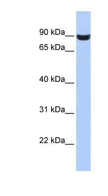 LRFN5 antibody LS-C102501 Western blot of HepG2 cell lysate.  This image was taken for the unconjugated form of this product. Other forms have not been tested.