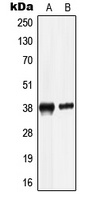 Western blot analysis of LRG expression in HepG2 (A); HL60 (B) whole cell lysates.