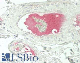 Human Small Intestine, Submucosal Vessels: Formalin-Fixed, Paraffin-Embedded (FFPE)