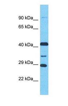 LRGUK Antibody - Western blot of LRGUK Antibody with NCI-H226 Whole Cell lysate.  This image was taken for the unconjugated form of this product. Other forms have not been tested.