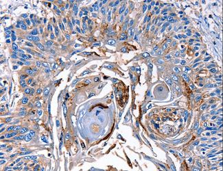 Immunohistochemistry of Human esophagus cancer using LRP2 Polyclonal Antibody at dilution of 1:40.
