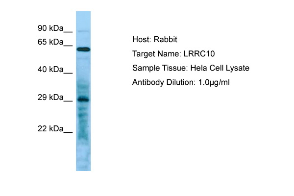 LRRC10 Antibody -  This image was taken for the unconjugated form of this product. Other forms have not been tested.