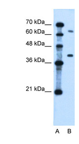LRRC26 Antibody - LRRC26 antibody ARP44660_P050-NP_001013675-LRRC26  Antibody Western blot of Jurkat lysate.  This image was taken for the unconjugated form of this product. Other forms have not been tested.