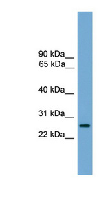 LRRC3 Antibody - LRRC3 antibody Western blot of Fetal Brain lysate. This image was taken for the unconjugated form of this product. Other forms have not been tested.