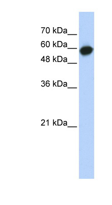 LRRC6 antibody LS-C102548 Western blot of Transfected 293T cell lysate.  This image was taken for the unconjugated form of this product. Other forms have not been tested.