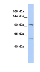 LRRC66 Antibody - LRRC66 antibody Western blot of Jurkat lysate. This image was taken for the unconjugated form of this product. Other forms have not been tested.