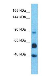 LRRC66 Antibody - Western blot of LRC66 Antibody with human Liver Tumor lysate.  This image was taken for the unconjugated form of this product. Other forms have not been tested.