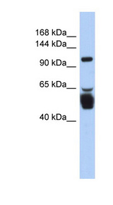 LRRC8B antibody Western blot of Fetal Stomach lysate. This image was taken for the unconjugated form of this product. Other forms have not been tested.