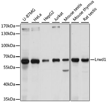 LRWD1 Antibody - Western blot analysis of extracts of various cell lines, using Lrwd1 antibody at 1:1000 dilution. The secondary antibody used was an HRP Goat Anti-Rabbit IgG (H+L) at 1:10000 dilution. Lysates were loaded 25ug per lane and 3% nonfat dry milk in TBST was used for blocking. An ECL Kit was used for detection and the exposure time was 5s.