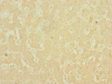 LSD / DNASE1L3 Antibody - Immunohistochemistry of paraffin-embedded human liver cancer using DNASE1L3 Antibody at dilution of 1:100