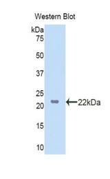 Western blot of recombinant LSS.  This image was taken for the unconjugated form of this product. Other forms have not been tested.
