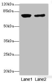 Western blot All Lanes: LSSantibody at 0.76ug/ml Lane 1 : PC-3 whole cell lysate Lane 2 : Hela whole cell lysate Secondary Goat polyclonal to Rabbit IgG at 1/10000 dilution Predicted band size: 84,75,83 kDa Observed band size: 83 kDa
