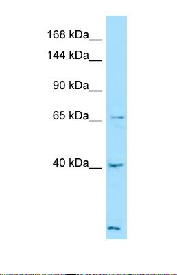 Western blot of Human ACHN. LTBP4 antibody dilution 1.0 ug/ml.  This image was taken for the unconjugated form of this product. Other forms have not been tested.