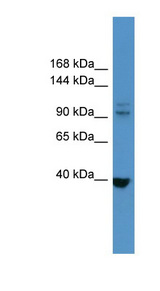 LTK antibody Western blot of HeLa lysate.  This image was taken for the unconjugated form of this product. Other forms have not been tested.