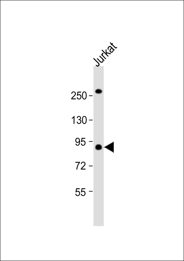 Anti-LTK Antibody at 1:1000 dilution + Jurkat whole cell lysate Lysates/proteins at 20 ug per lane. Secondary Goat Anti-Rabbit IgG, (H+L), Peroxidase conjugated at 1:10000 dilution. Predicted band size: 92 kDa. Blocking/Dilution buffer: 5% NFDM/TBST.