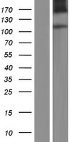 LVRN / Laeverin Protein - Western validation with an anti-DDK antibody * L: Control HEK293 lysate R: Over-expression lysate