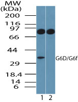 LY6G6F Antibody - Western blot of G6D in human platelet lysate in the 1) absence and 2) presence of immunizing peptide using Polyclonal Antibody to G6D at 1.0 ug/ml. Goat anti-rabbit Ig HRP secondary antibody, and PicoTect ECL substrate solution, were used for this test.