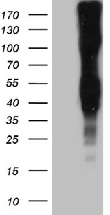 LY9 / CD229 Antibody - HEK293T cells were transfected with the pCMV6-ENTRY control. (Left lane) or pCMV6-ENTRY. (Right lane) cDNA for 48 hrs and lysed. Equivalent amounts of cell lysates. (5 ug per lane) were separated by SDS-PAGE and immunoblotted with anti-LY9. (1:2000)