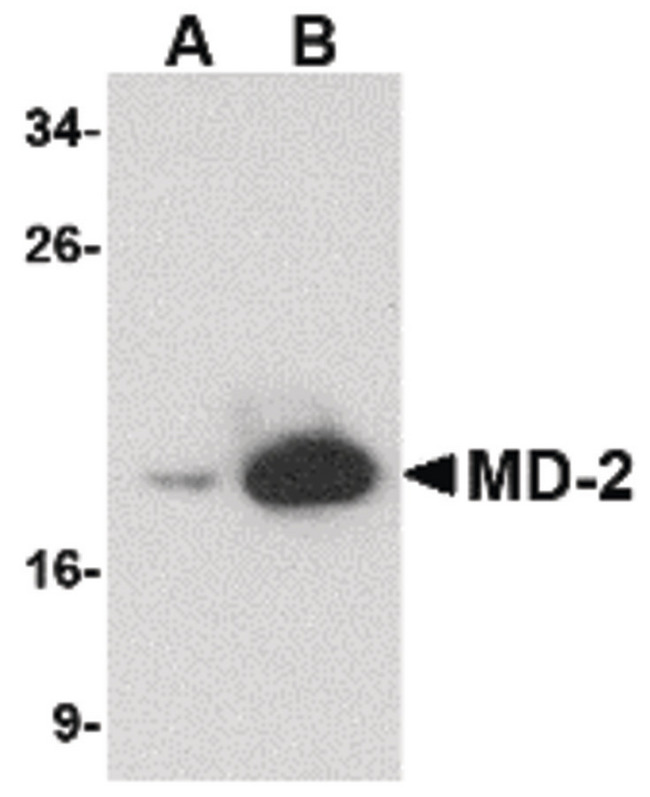 LY96 / MD2 / MD-2 Antibody - Western blot of (A) 25 and (B) 125 ng of MD-2 recombinant protein with MD-2 antibody at 1 ug/ml.