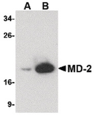 Western blot of (A) 25 and (B) 125 ng of MD-2 recombinant protein with MD-2 antibody at 1 ug/ml.