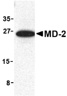 LY96 / MD2 / MD-2 Antibody - Western blot of MD-2 in mouse spleen cell lysate with MD-2 antibody at 1 ug/ml.