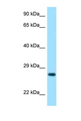 LYG2 antibody LS-C146112 Western blot of 435S Cell lysate. Antibody concentration 1 ug/ml.  This image was taken for the unconjugated form of this product. Other forms have not been tested.