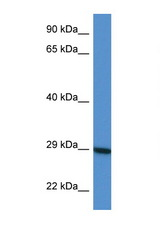 LYG2 antibody Western blot of HepG2 Cell lysate. Antibody concentration 1 ug/ml.  This image was taken for the unconjugated form of this product. Other forms have not been tested.