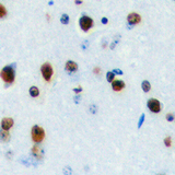 Immunohistochemical analysis of LYL1 staining in human brain formalin fixed paraffin embedded tissue section. The section was pre-treated using heat mediated antigen retrieval with sodium citrate buffer (pH 6.0). The section was then incubated with the antibody at room temperature and detected using an HRP conjugated compact polymer system. DAB was used as the chromogen. The section was then counterstained with hematoxylin and mounted with DPX.