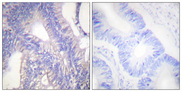 Immunohistochemistry analysis of paraffin-embedded human colon carcinoma tissue, using Lyn Antibody. The picture on the right is blocked with the synthesized peptide.