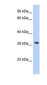 LYPLA2 Antibody - LYPLA2 antibody Western blot of 293T cell lysate. This image was taken for the unconjugated form of this product. Other forms have not been tested.
