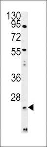 LYPLAL1 Antibody - LYPL1 Antibody western blot of mouse Neuro-2a cell line lysates (35 ug/lane). The LYPL1 antibody detected the LYPL1 protein (arrow).
