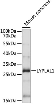 LYPLAL1 Antibody - Western blot analysis of extracts of Mouse pancreas, using LYPLAL1 antibody at 1:1000 dilution. The secondary antibody used was an HRP Goat Anti-Rabbit IgG (H+L) at 1:10000 dilution. Lysates were loaded 25ug per lane and 3% nonfat dry milk in TBST was used for blocking. An ECL Kit was used for detection and the exposure time was 30s.