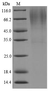 Lys-C Protein - (Tris-Glycine gel) Discontinuous SDS-PAGE (reduced) with 5% enrichment gel and 15% separation gel.The reducing (R) protein migrates as 75 kDa in SDS-PAGE may be due to glycosylation.