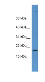 LYZ / Lysozyme Antibody - LYZ / Lysozyme antibody Western blot of Fetal Heart lysate.  This image was taken for the unconjugated form of this product. Other forms have not been tested.