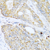 LYZ / Lysozyme Antibody - Immunohistochemistry of paraffin-embedded human colon carcinoma tissue.