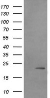 LZIC Antibody - HEK293T cells were transfected with the pCMV6-ENTRY control (Left lane) or pCMV6-ENTRY LZIC (Right lane) cDNA for 48 hrs and lysed. Equivalent amounts of cell lysates (5 ug per lane) were separated by SDS-PAGE and immunoblotted with anti-LZIC.