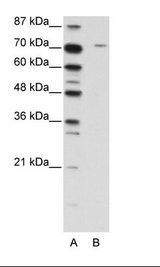 LZTS1 Antibody - A: Marker, B: Jurkat Cell Lysate.  This image was taken for the unconjugated form of this product. Other forms have not been tested.