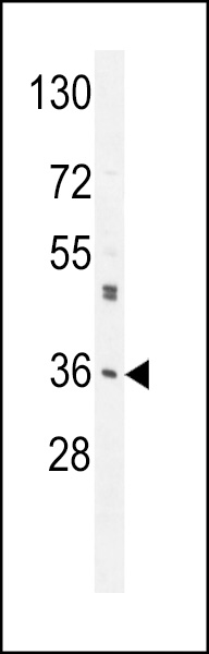 M6PR Antibody western blot of A549 cell line lysates (35 ug/lane). The M6PR antibody detected the M6PR protein (arrow).