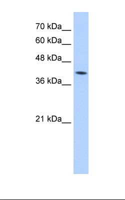 Jurkat cell lysate. Antibody concentration: 5.0 ug/ml. Gel concentration: 12%.  This image was taken for the unconjugated form of this product. Other forms have not been tested.