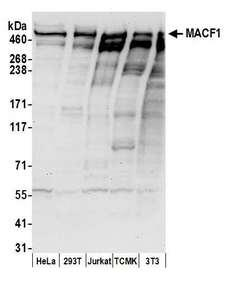 MACF1 Antibody - Detection of human and mouse MACF1 by western blot. Samples: Whole cell lysate (50 µg) from HeLa, HEK293T, Jurkat, mouse TCMK-1, and mouse NIH 3T3 cells prepared using NETN lysis buffer. Antibodies: Affinity purified rabbit anti-MACF1 antibody used for WB at 0.1 µg/ml. Detection: Chemiluminescence with an exposure time of 30 seconds.