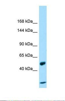 MACS / RIN2 Antibody - Western blot of Placenta. CCDC80 antibody dilution 1.0 ug/ml.  This image was taken for the unconjugated form of this product. Other forms have not been tested.