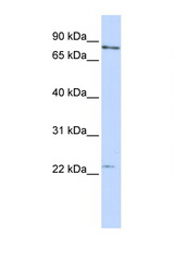 MAD2L1 antibody LS-C112300 Western blot of MCF7 Cell lysate. Antibody concentration 1 ug/ml.  This image was taken for the unconjugated form of this product. Other forms have not been tested.