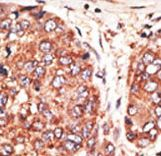 MAFK Antibody - Formalin-fixed and paraffin-embedded human cancer tissue reacted with the primary antibody, which was peroxidase-conjugated to the secondary antibody, followed by AEC staining. This data demonstrates the use of this antibody for immunohistochemistry; clinical relevance has not been evaluated. BC = breast carcinoma; HC = hepatocarcinoma.