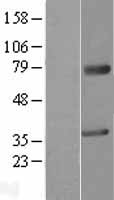 MAGEA2 Protein - Western validation with an anti-DDK antibody * L: Control HEK293 lysate R: Over-expression lysate