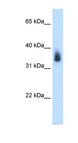 MAGEA8 Antibody - MAGEA8 antibody ARP42233_P050-NP_005355-MAGEA8(melanoma antigen family A, 8) Antibody Western blot of Placenta lysate.  This image was taken for the unconjugated form of this product. Other forms have not been tested.