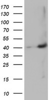 HEK293T cells were transfected with the pCMV6-ENTRY control (Left lane) or pCMV6-ENTRY MAGEB18 (Right lane) cDNA for 48 hrs and lysed. Equivalent amounts of cell lysates (5 ug per lane) were separated by SDS-PAGE and immunoblotted with anti-MAGEB18.